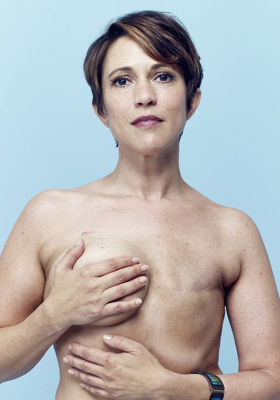 Single Mastectomy