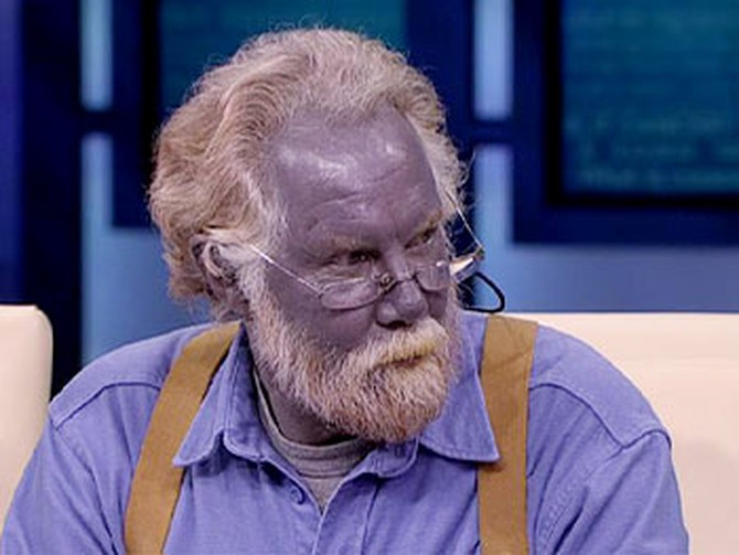 Dr Oz Investigates The Man Who Turned Blue