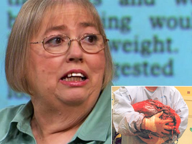 Linda was rushed into surgery to remove a 140-pound tumor.