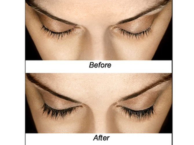 Allergan's Latisse lash growth before and after