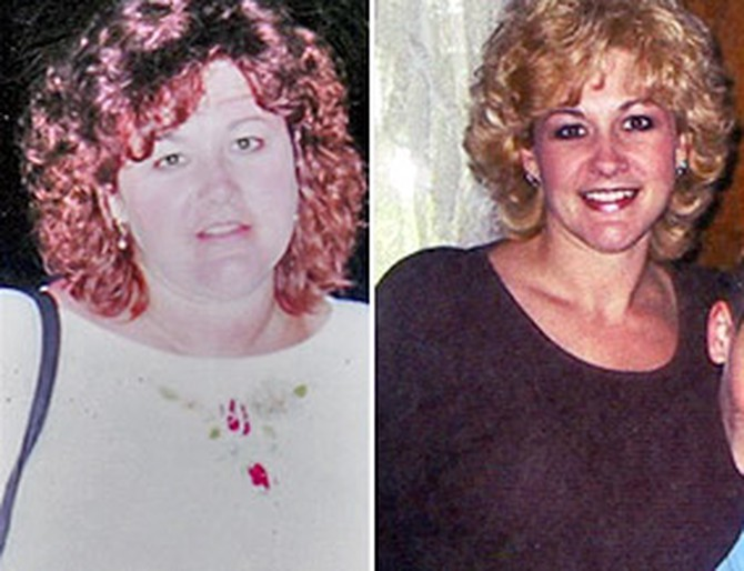 Lori before and after gastric bypass surgery