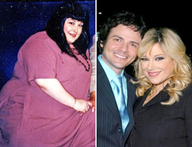 Carnie Wilson before and after surgery