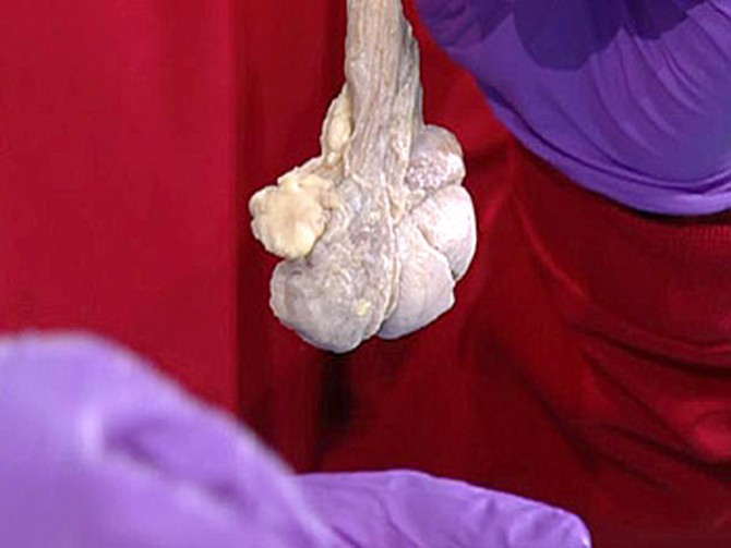 Dr. Oz shows a testicle.