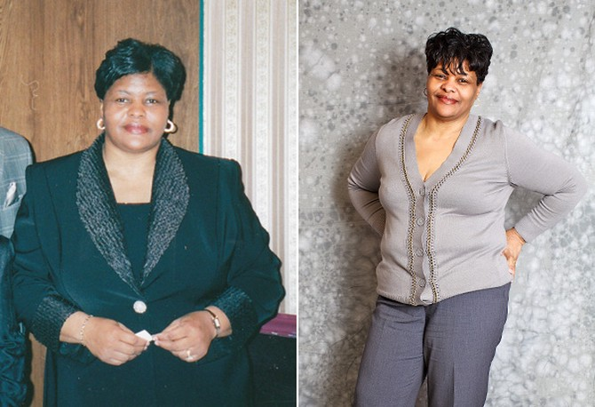 Vera, before and after losing weight