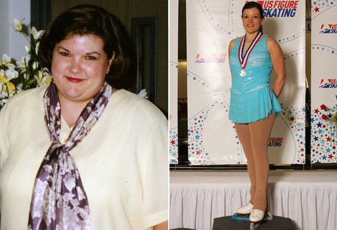 Sandra before and after losing 106 pounds